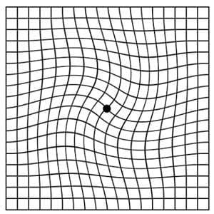 Distorted Amsler grid