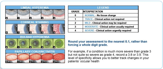 Acuvue grading chart